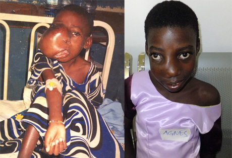 Agnes, before and after treatment