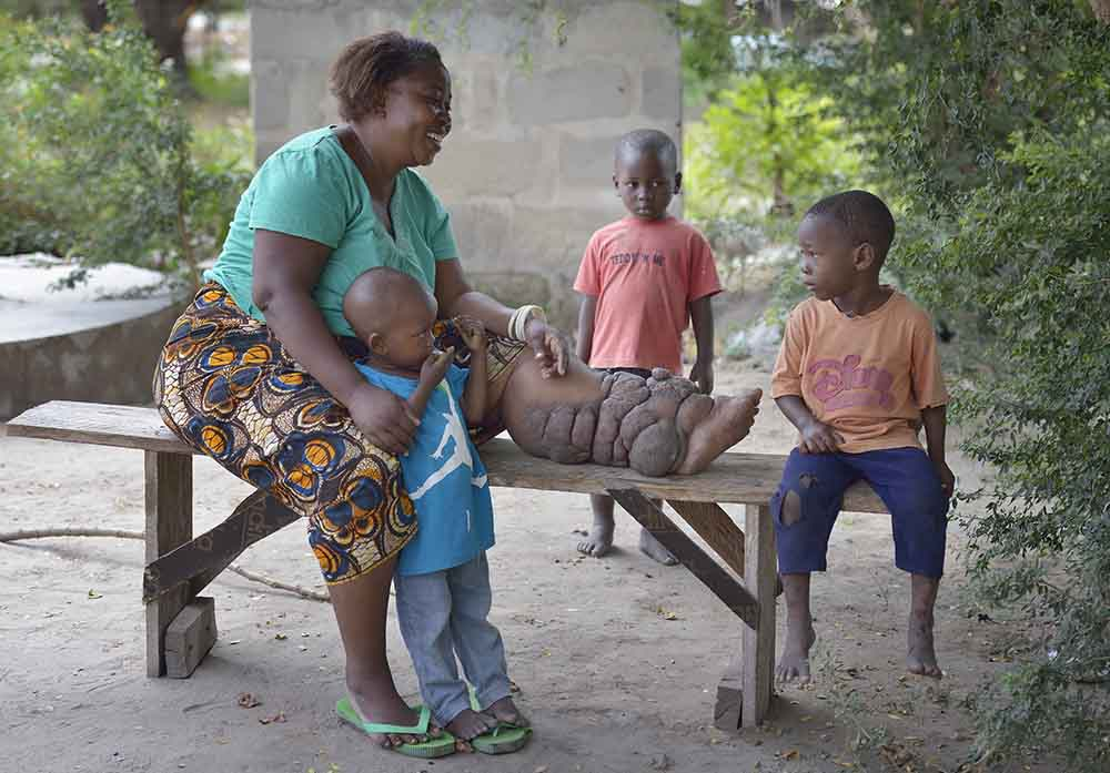 Woman with Lymphatic filariasis