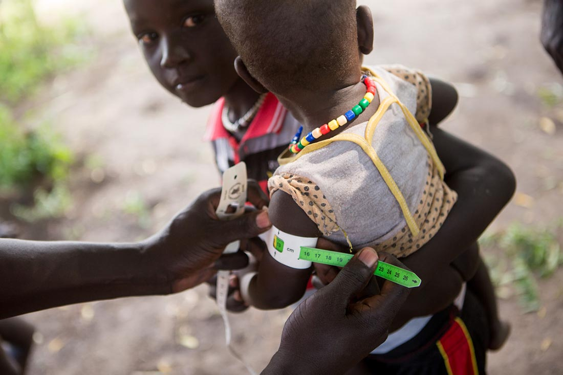 "A nutritionist measures the arm circumference of a child as a team with the John Dau Foundation conducts house-to-house malnutrition assessments of young children and lactating mothers in Duk Padiet in South Sudan's Jonglei state, September 28, 2017. Anyone who meets the criteria will be asked to come to a follow up appointment the following day at the John Dau Foundation clinic compound for treatment. Lutheran World Relief has partnered with IMA World Health and in turn, the John Dau Foundation, to set up and run three life-saving medical stabilization centers, including in Duk Padiet, to treat young children and lactating mothers at risk of death from starvation. The project, called ""Providing Emergency Nutrition Services in South Sudan"" will reach just under 100,000 individuals. (photo by Allison Shelley for Lutheran World Relief)"